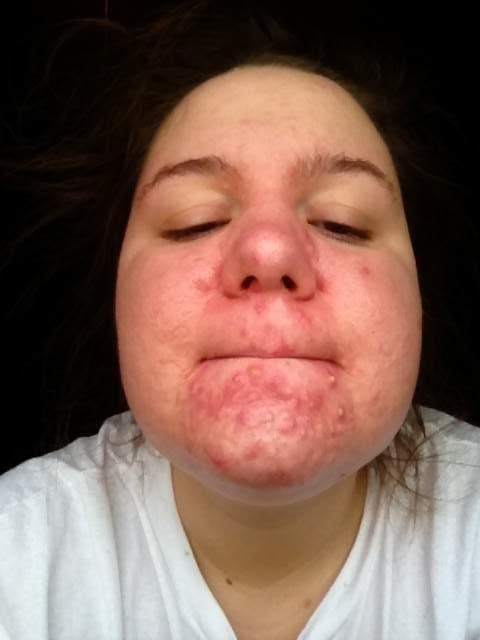 Initial breakout chin