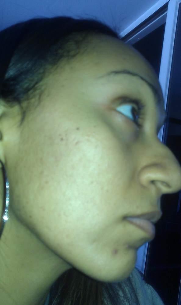 acne.orgpic2