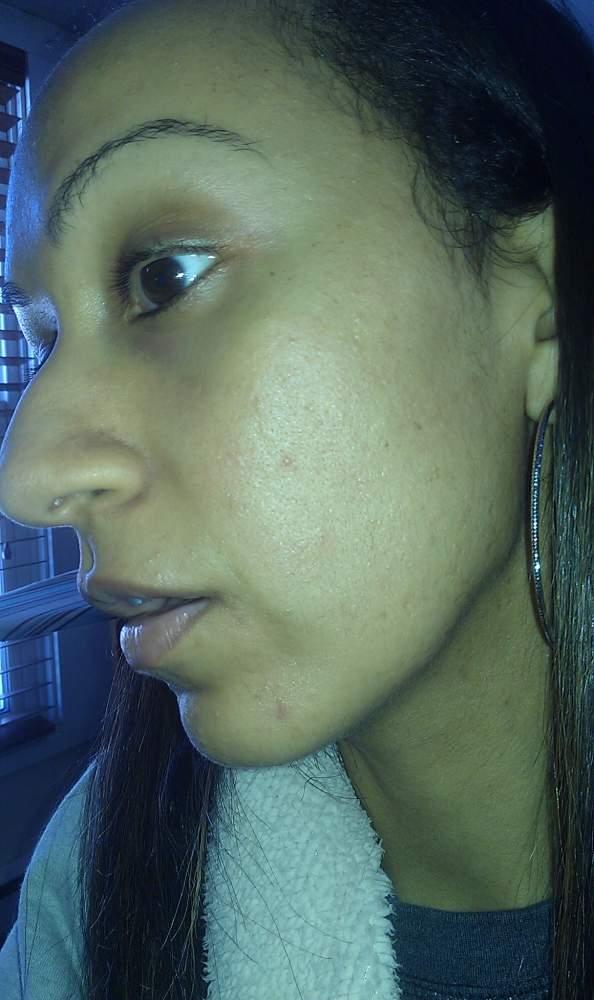 acne.orgpic1