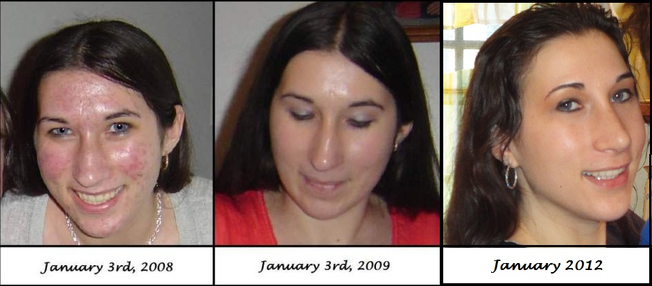 Accutane Results 2008-now