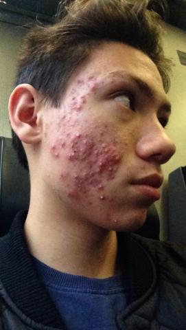 acné severe cicatrice acné