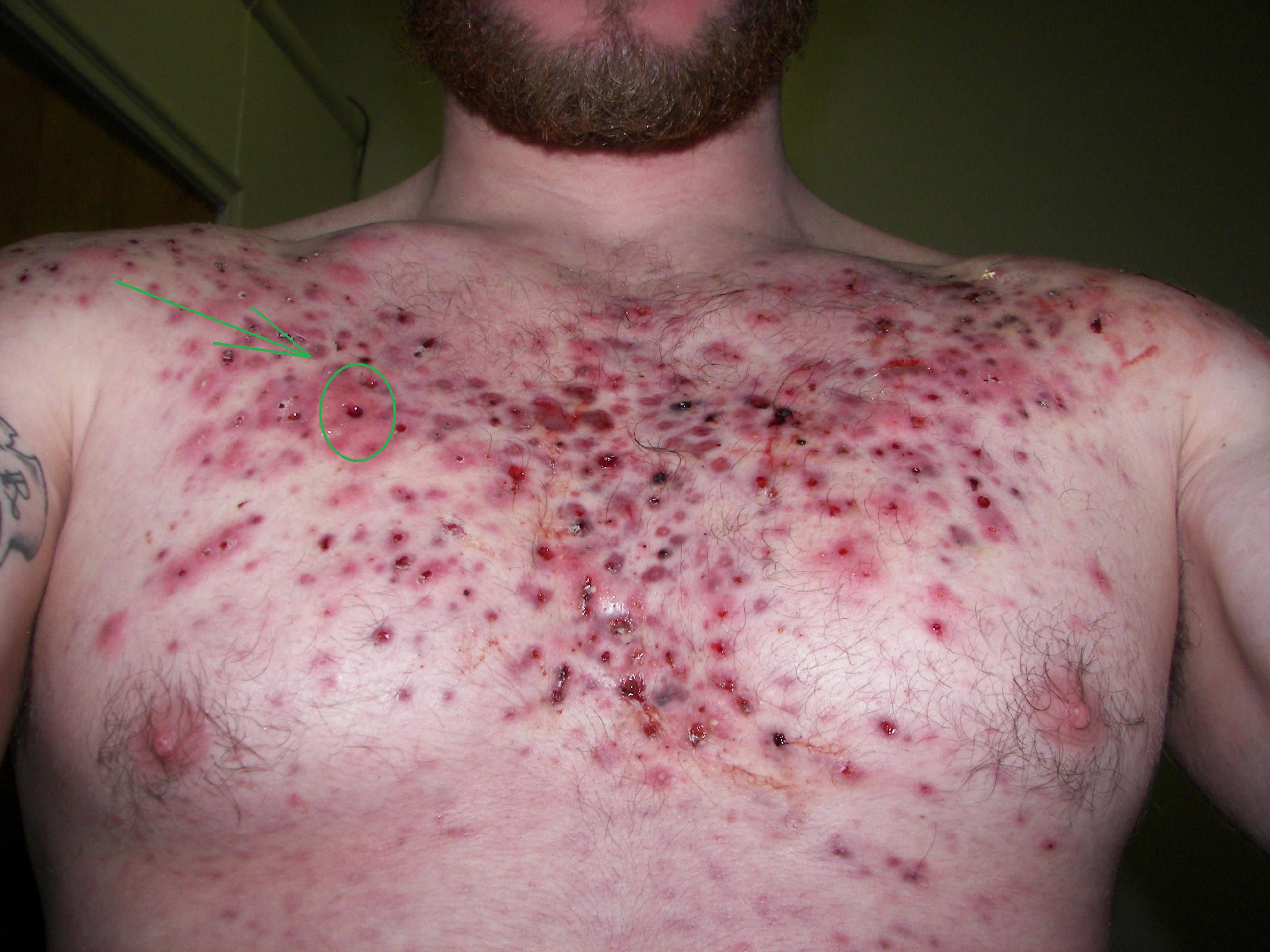 Hole in chest from acne... what to do about it? (Pic ...