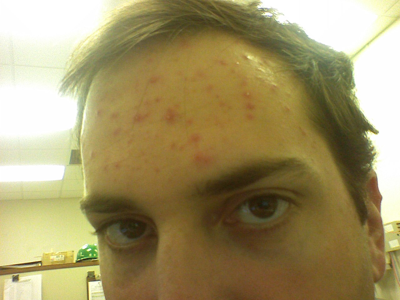 Severe breakout out of nowhere! - Adult acne - Acne.org ...