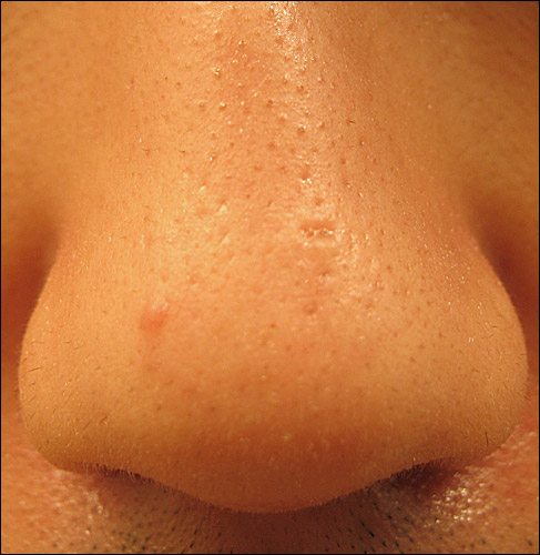 how to get rid of burn scars on nose