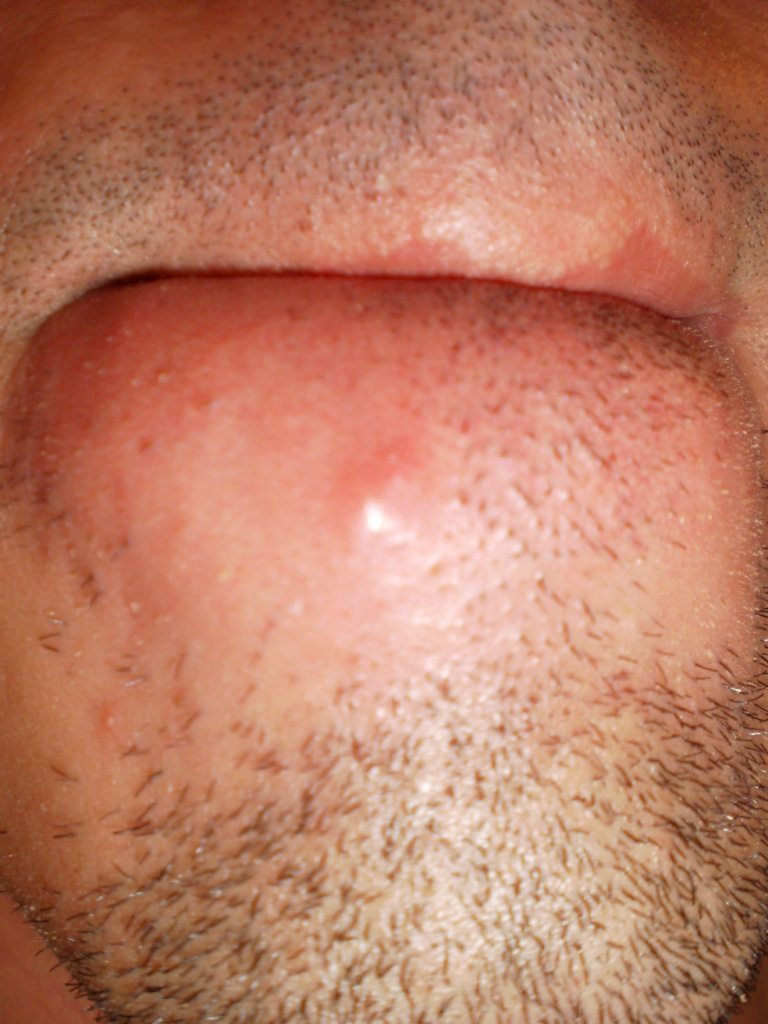 acne adult chin htm