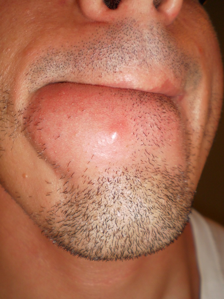 adult chin acne
