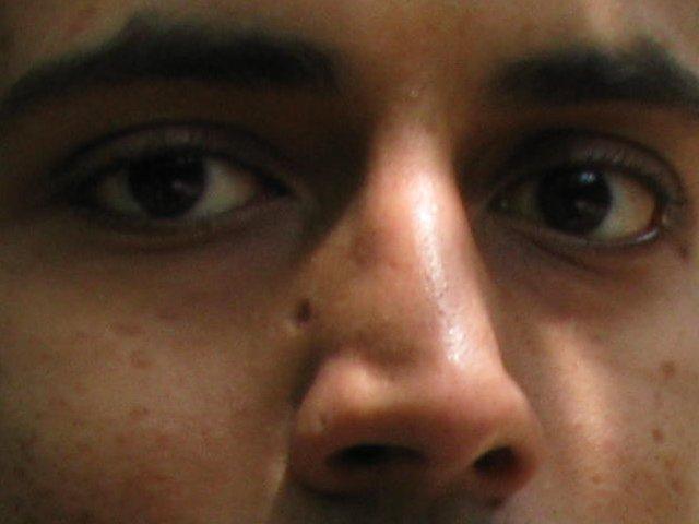 chicken pox scars - Scar treatments - Acne.org Community