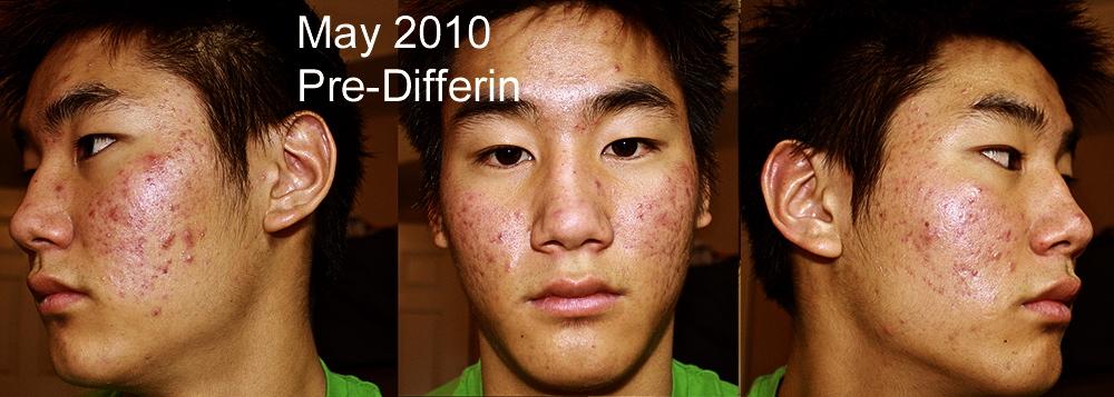 One year of Differin (.3%) and Clyndamycin Phosphate Gel