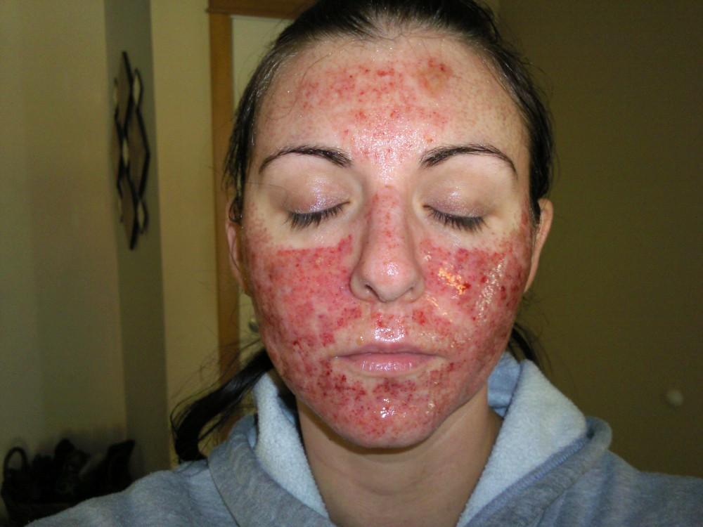 guérir l'acné par le magnétisme définition