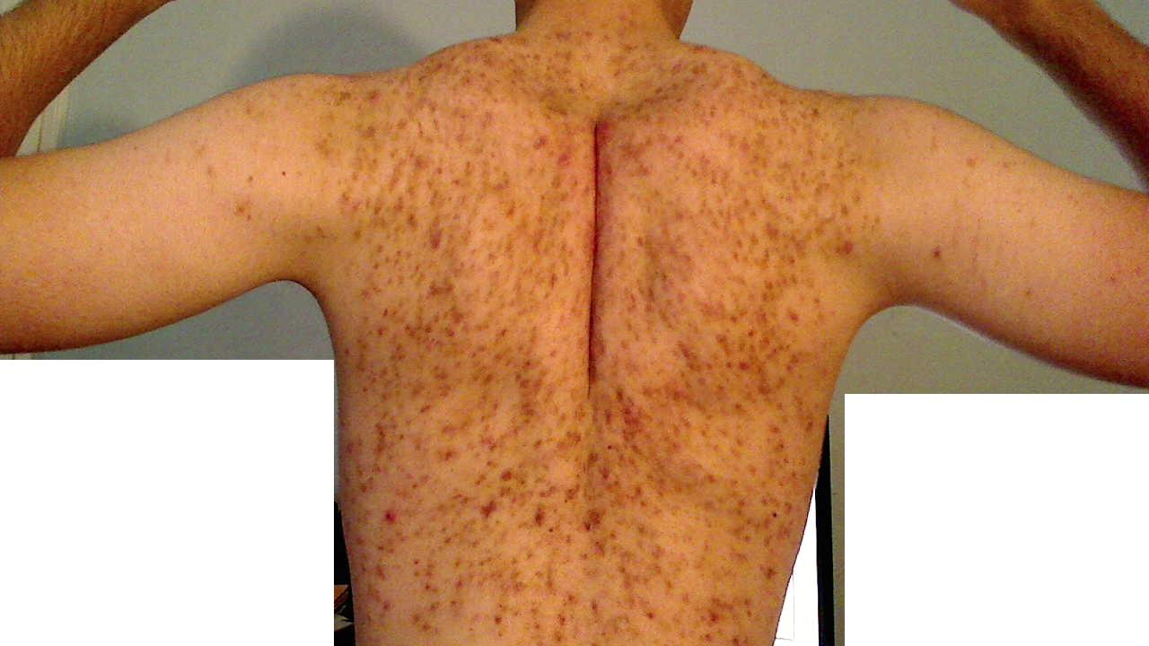 how to clear bacne scars