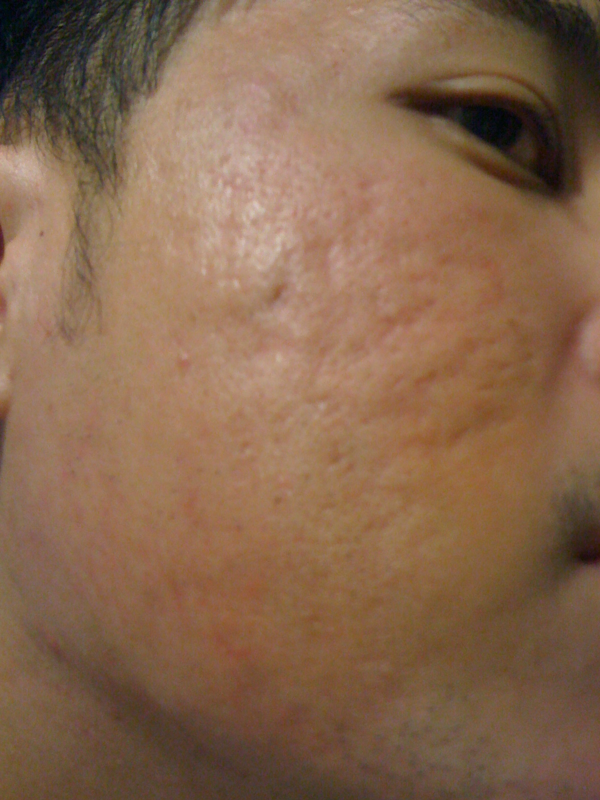 hello, Is this considered severe acne ? - Scar treatments ...