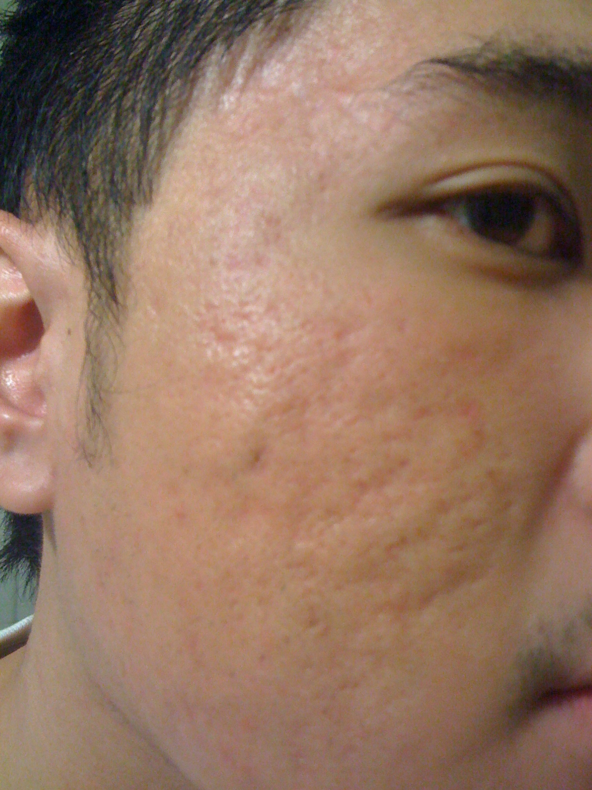 Severe Acne Scars Treatment hello, Is this ...