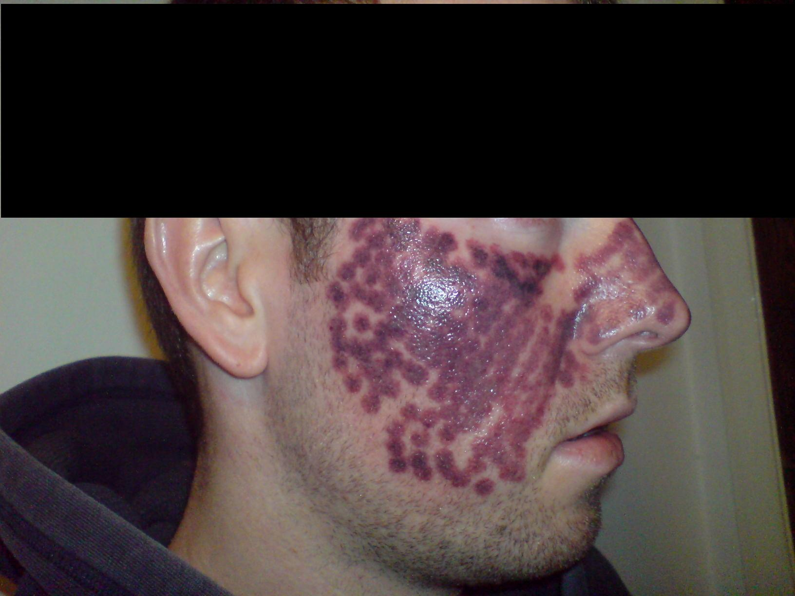 Vbeam After The Treatment Pics Other Acne Treatments