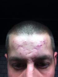 Keeping Getting Bad Cysts On My Forehead.. - General acne discussion ...
