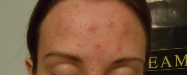 Pimples On Scalp After Haircut Gallery Haircuts For Men And Women
