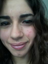 Bad pseudo scars scar treatments acne community post 162465 0 58186800 1321645006thumb ccuart Gallery