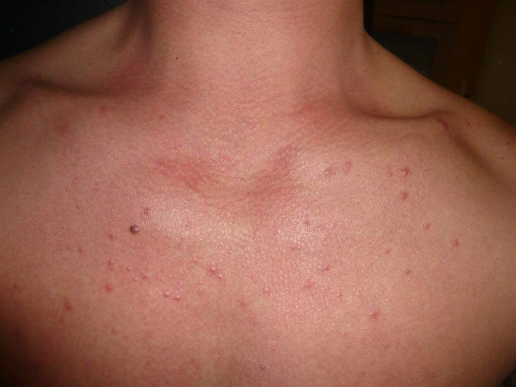 Treating Pityrosporum Folliculitis with Itraconazole ...
