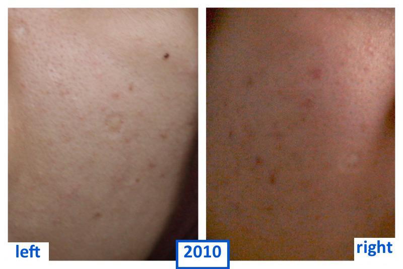 2010.thumb.jpg.68b02099b714b9380315ac50b