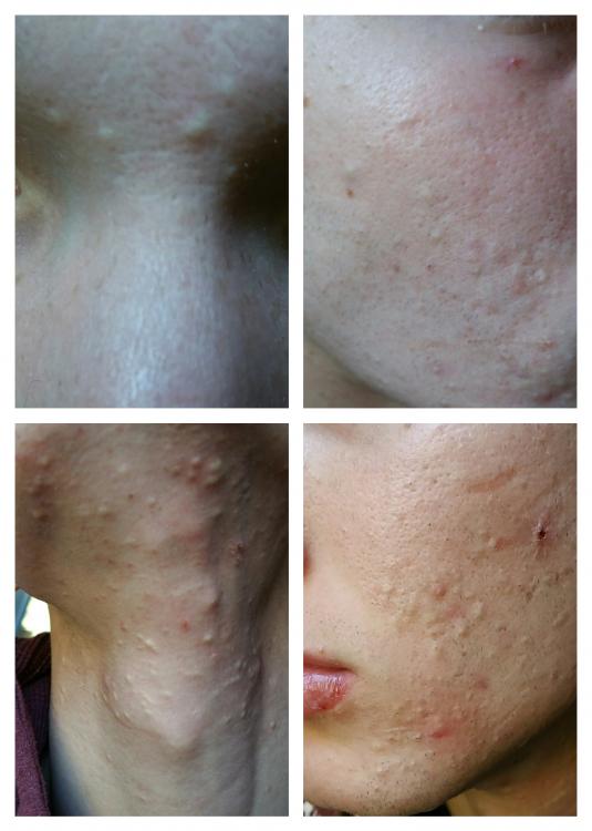 acne.jpg.png