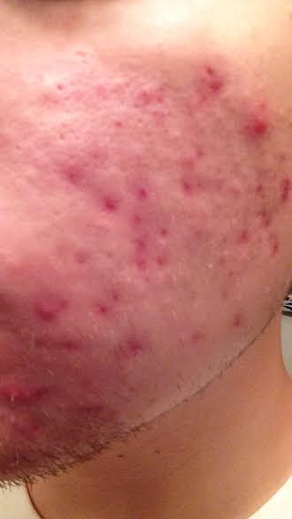 acne19.jpg