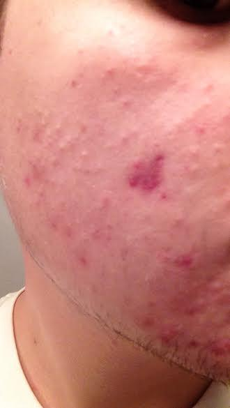 acne21.jpg