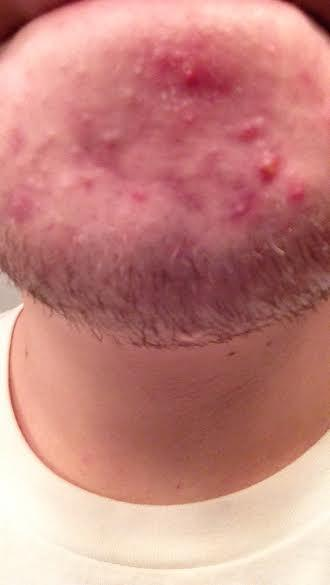 acne22.jpg