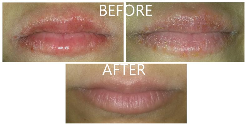 Accutane Users Amazing Cure For Cracked And Chapped Lips