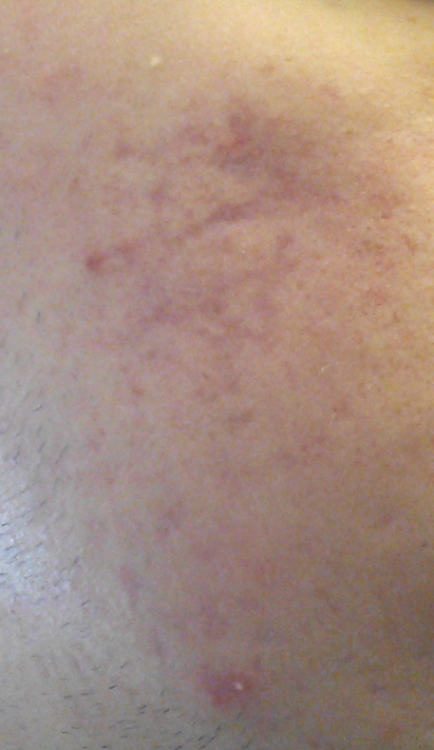 newest_acne_pic.thumb.png.9e77cf99a35327