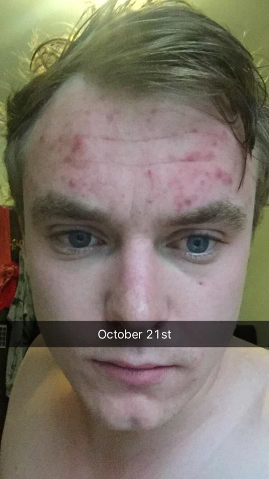 Forehead Acne: My 4 month battle and cure (22 years old ...