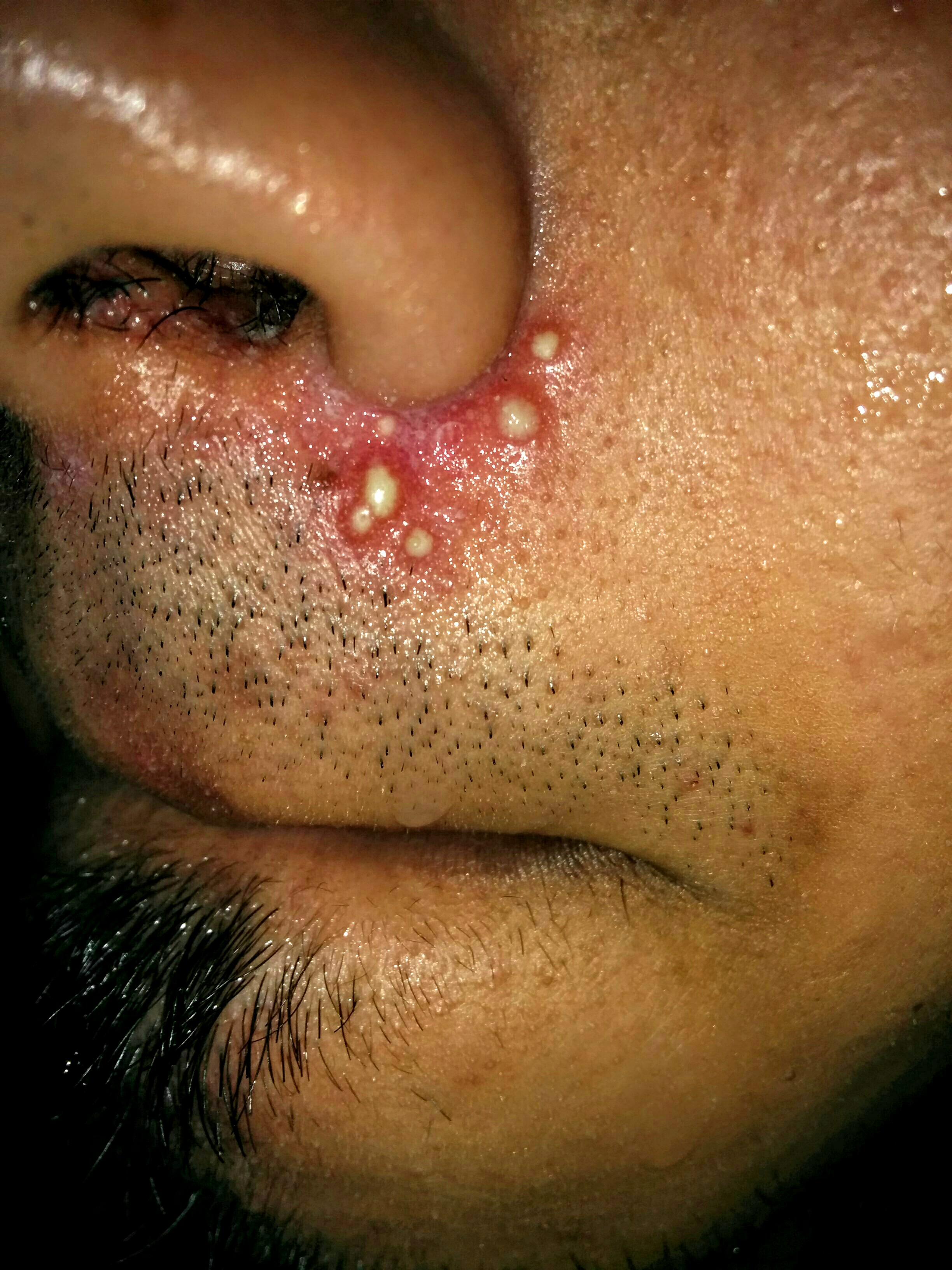White pustules around mouthnose pictures included general img201507262131262g ccuart Images