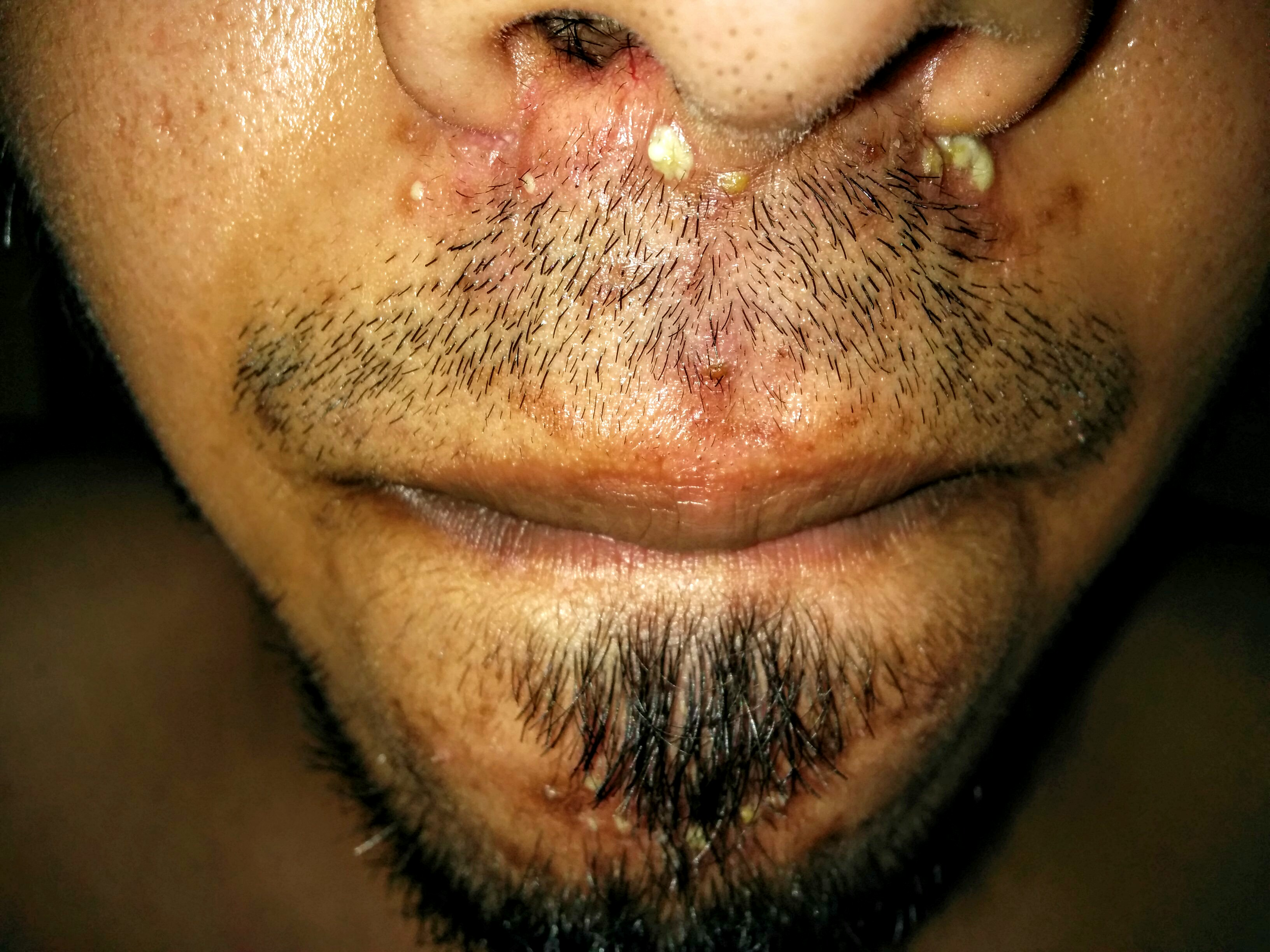 White pustules around mouthnose pictures included general img201508161421292g ccuart Images
