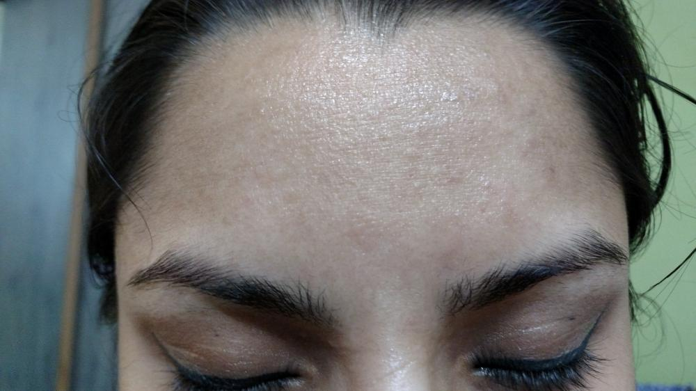uneven skin texture forehead
