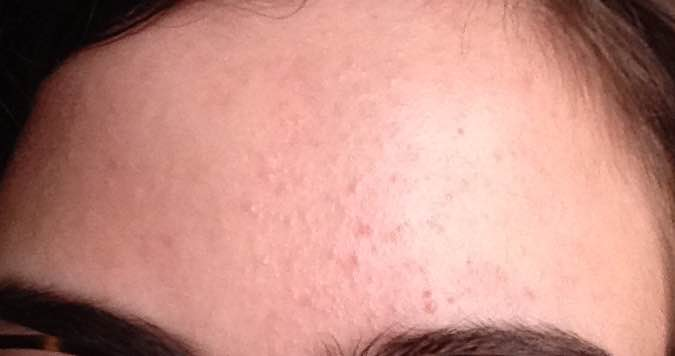 small bumps on my forehead? - General acne discussion ...