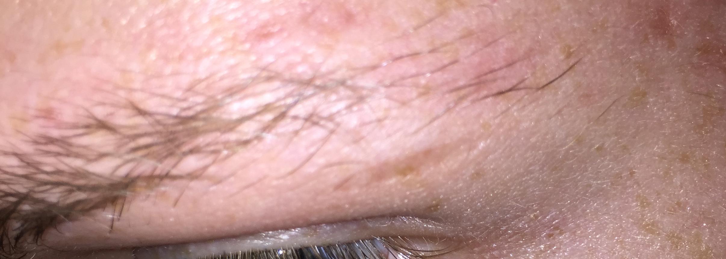 Eyebrow hair loss itching