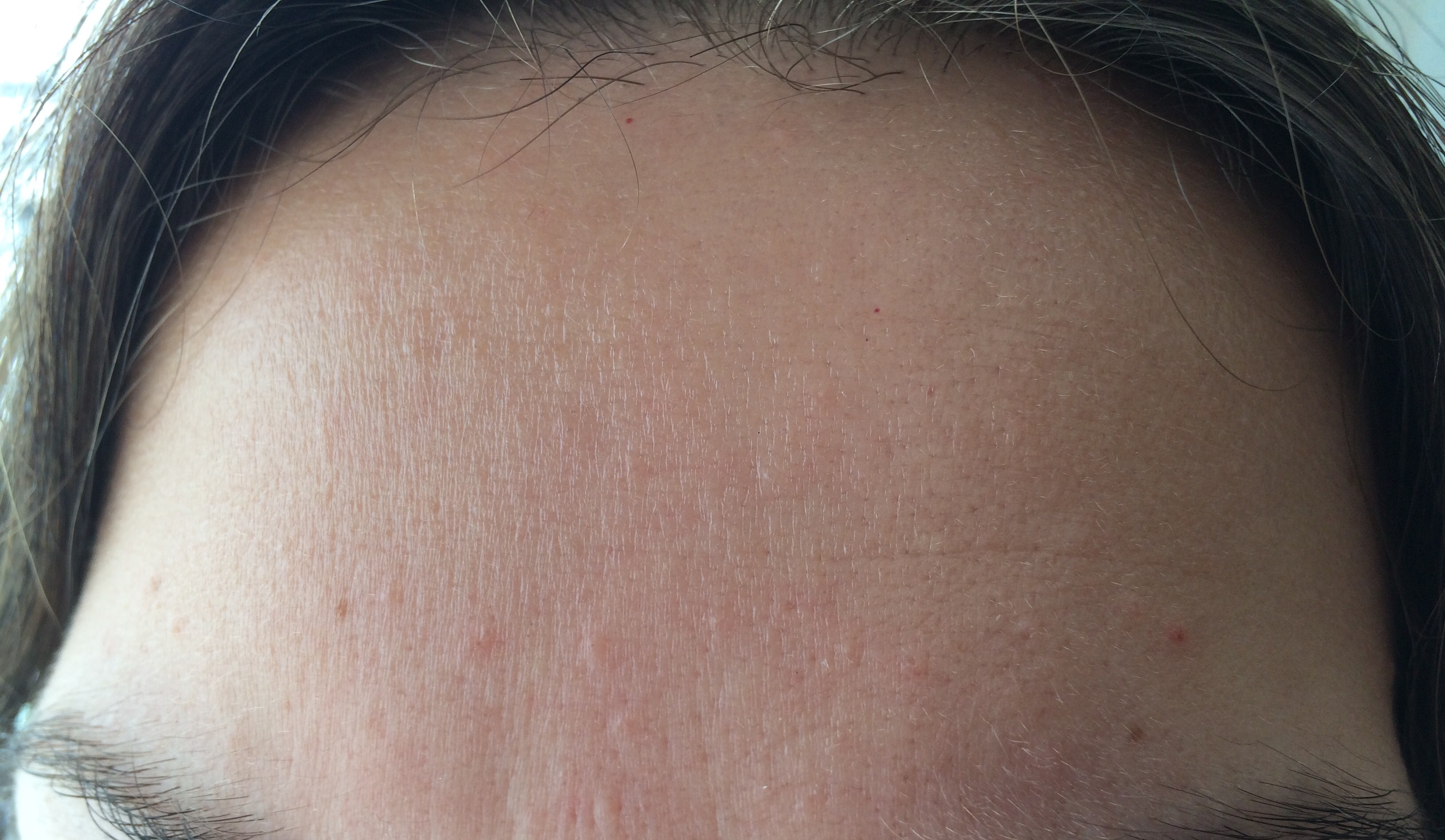 Small Flesh Colored Bumps on Forehead and Hairline - Adult ...