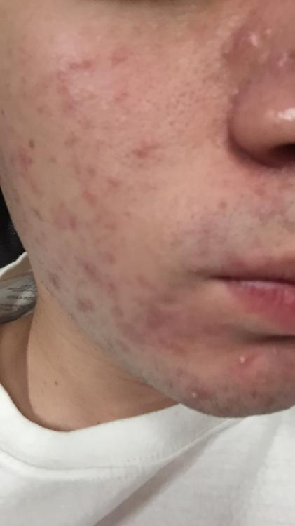 17 year old, severe acne, scars and redness - General acne ...