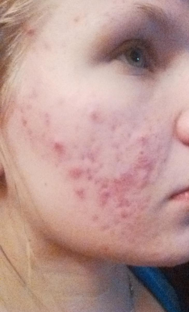 Two months on Tetracycline