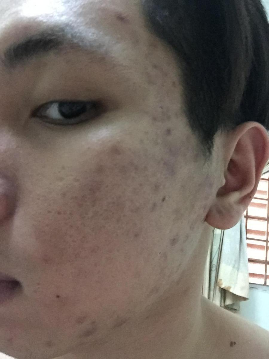 3 month used