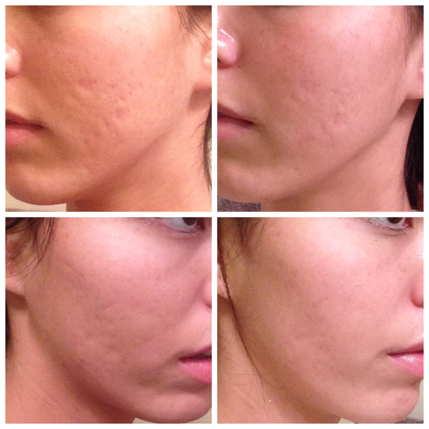 Post Subcision Results Scar Treatments Acne
