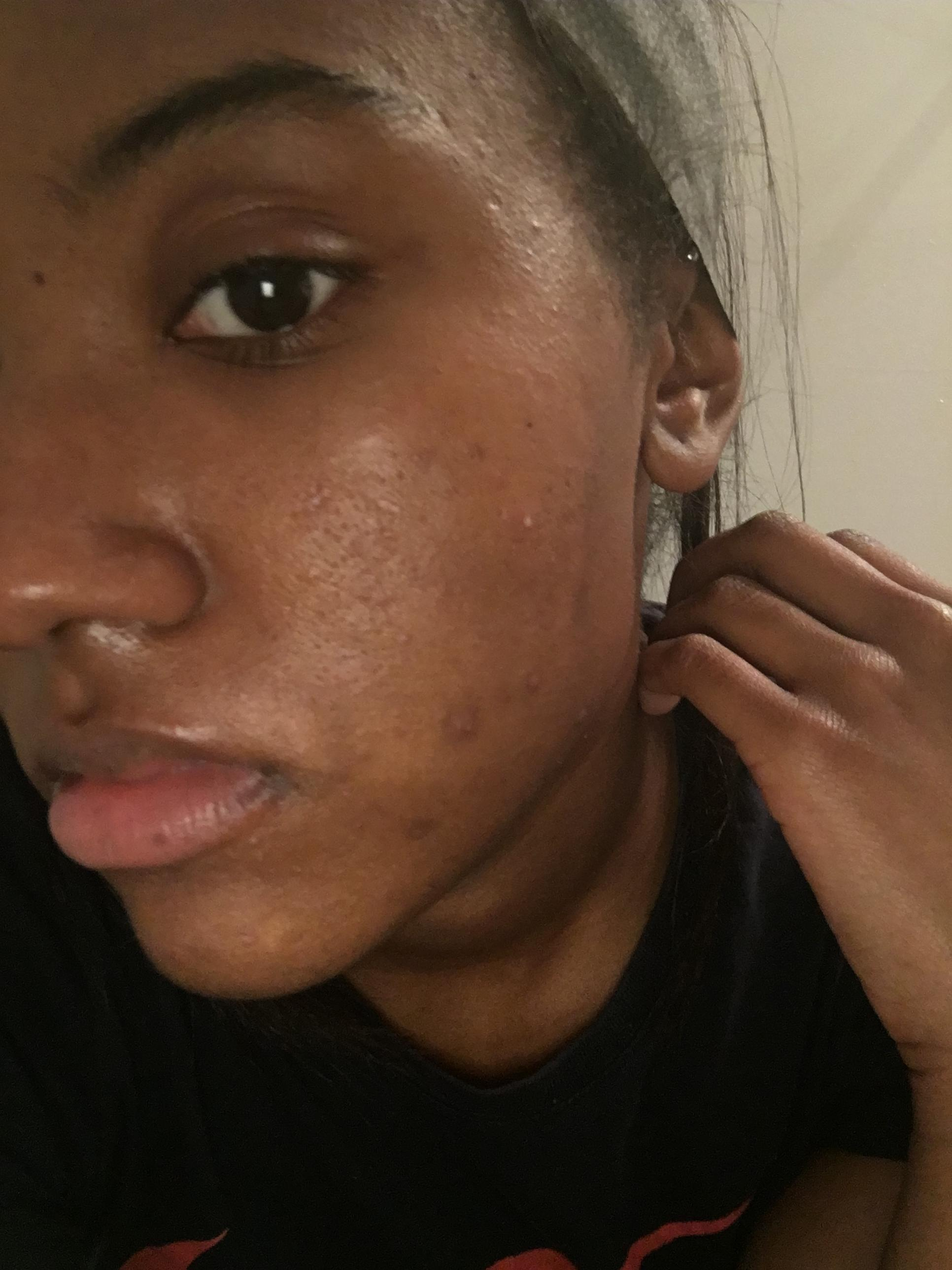 Could You Be Using Too Much ? - General acne discussion
