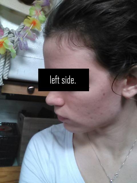 leftside.JPG.f5ed7bbd4068c81649c7d26906c