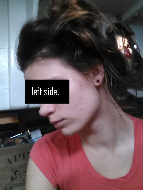 leftsideday2.JPG.9278212d86a1c816bbd3f05