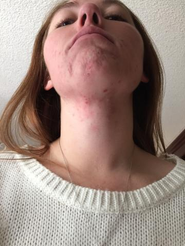 accutane cost with insurance 2019