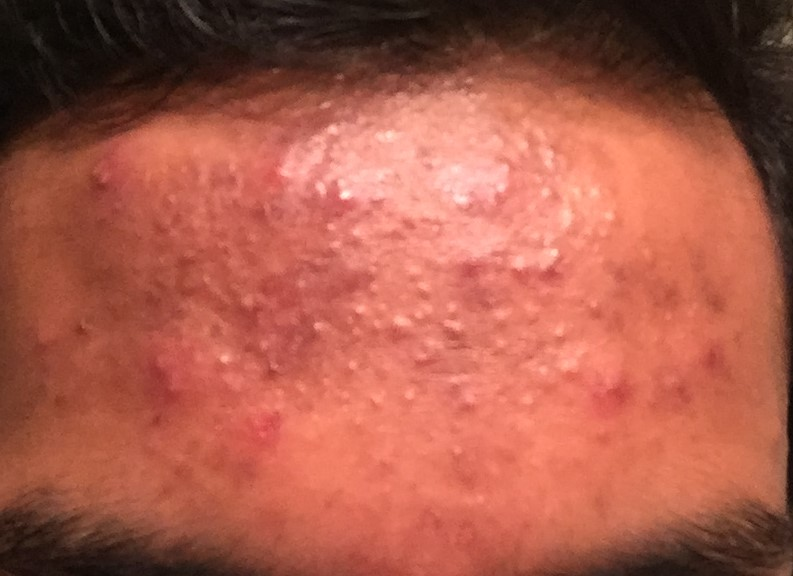 small bumps on forehead closed comedones general acne