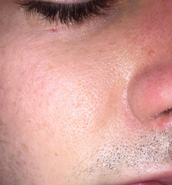 Terrible Large Pores General Acne Discussion By
