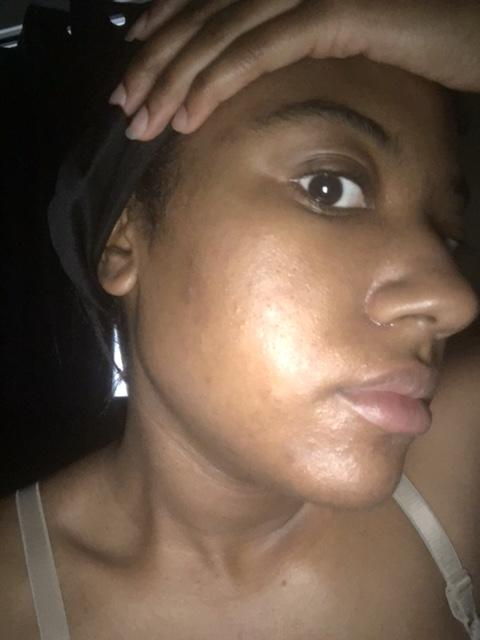 Day 1 (am) | I hadn't Recieved or used Acne.org products