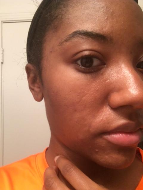 Day 2 (am) | Left Side | Before i washed my face