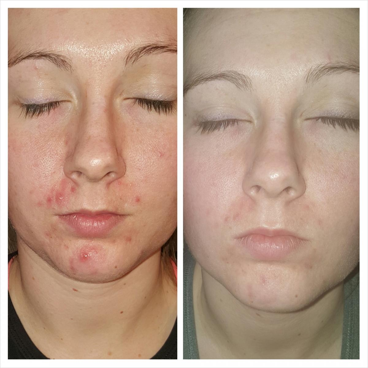4 days of following acne.org regimen