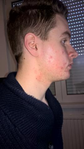 Acne Progression (Update Daily)