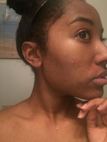 Acne.org | Full 2 Weeks